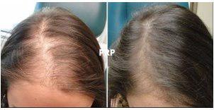 PRP håråterställning & Ansiktsbehandling