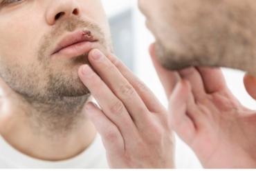 Herpes Behandling i Göteborg