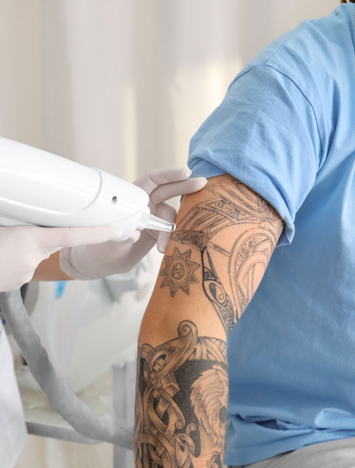 Tatueringsborttagning med Q switch Nd Yag laser i Ambers Laserklinik